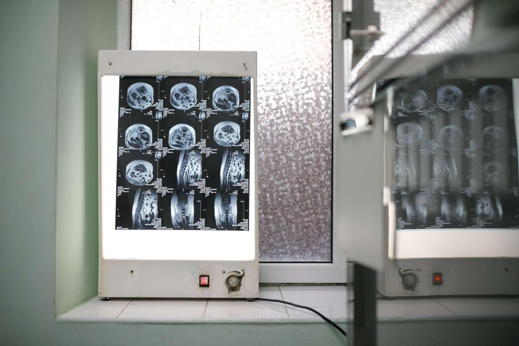 рентгенодиагностика животных